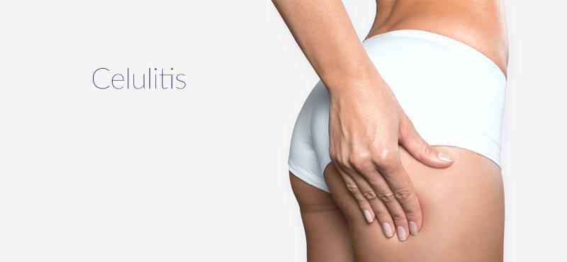 Tratamientos contra la Celulitis en Logrono